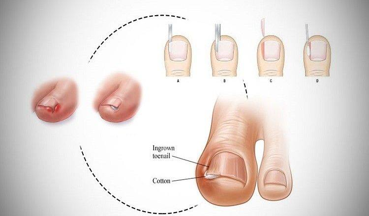 3 Great Home Remedies To Cure Ingrown Toenail Easily